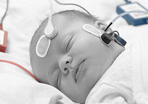 فیلم/ شنوایی نوزاد را حتما بسنجید