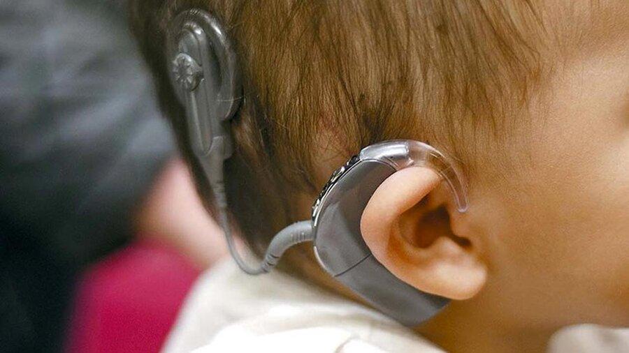۶۴ کودک ناشنوای خراسان رضوی، امسال از بهزیستی یارانهی کاشت حلزون دریافت کردهاند