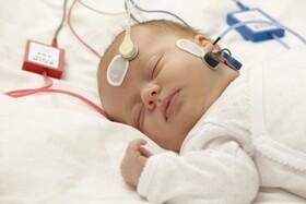 فیلم| غربالگری شنوایی شیرخواران و نوزادان