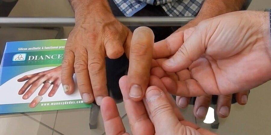 اقدام بهزیستی تهران برای ساخت رایگان اندام مصنوعی